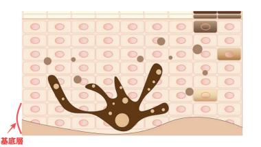 皮膚の構造イラスト画像